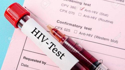 [Mais de 150 pessoas foram diagnosticadas com HIV em Feira de Santana no 1° semestre do ano]
