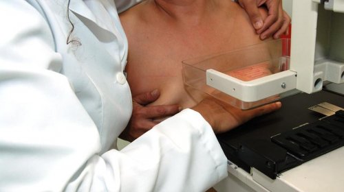 [Outubro Rosa: Mutirão gratuito oferece 120 vagas semanais para mamografia]