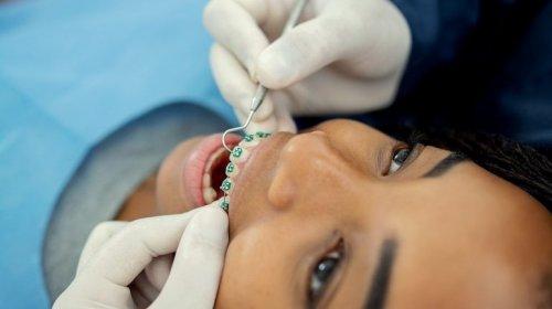 [MP aciona clínica odontológica por fazer manutenção de aparelhos sem supervisão de ortodontista]